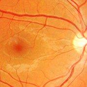 retina_landing_179x179