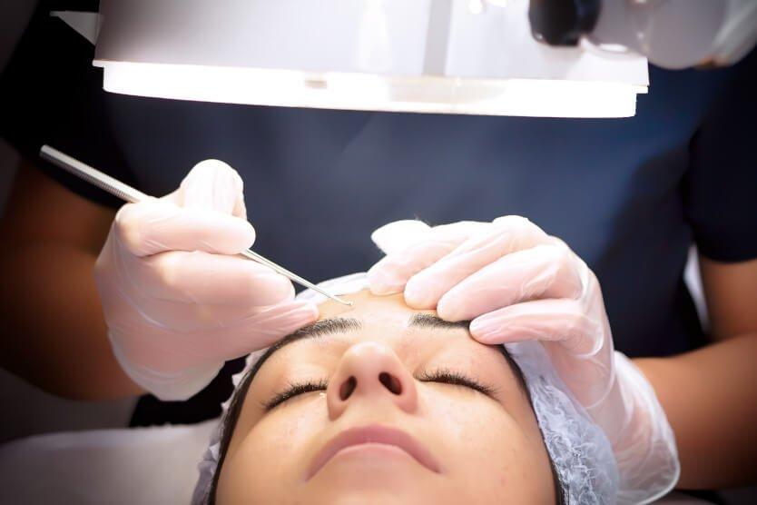 Oculoplastics surgery